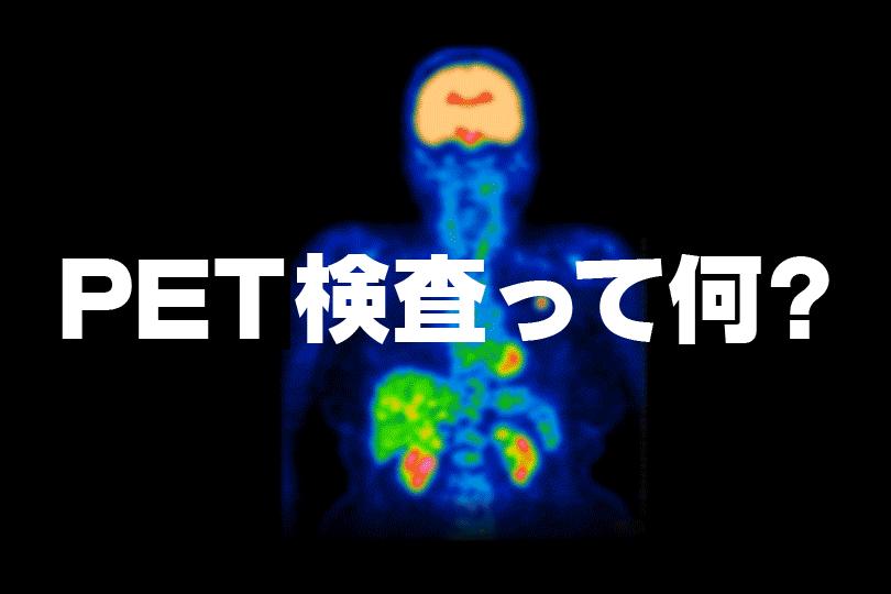 PET検査イメージ
